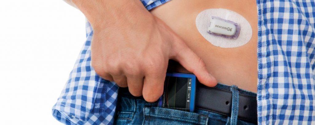 Un objet connecté de la marque Dexcom permettant de suivre son diabète
